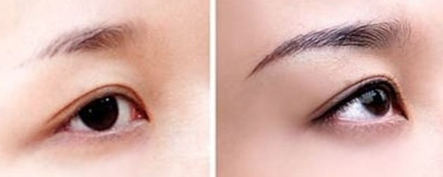 <font color=red>种植眉毛</font>和纹眉哪种好呢 打造个性自我