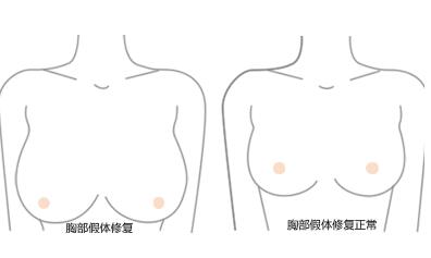 需要进行隆胸修复的情况有哪些  恢复最初的挺拔