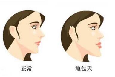 骨性地包天和牙性地包天有什么区别