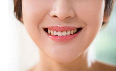 自锁托槽牙齿矫正需要多久 牙齿矫正术后如何护理