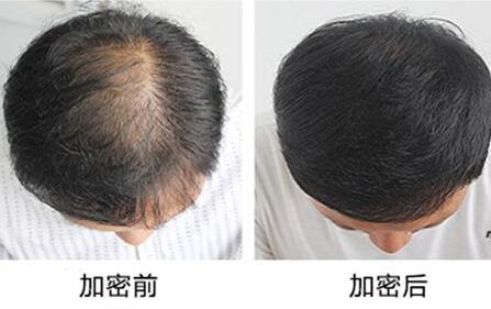 为什么头顶容易脱发 头发加密效果怎么样