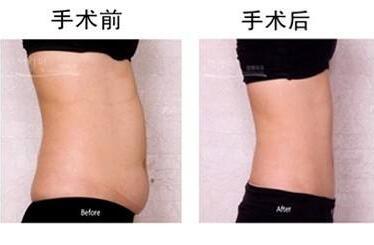 如何瘦腰上赘肉  水动力吸脂瘦腰的效果怎么样