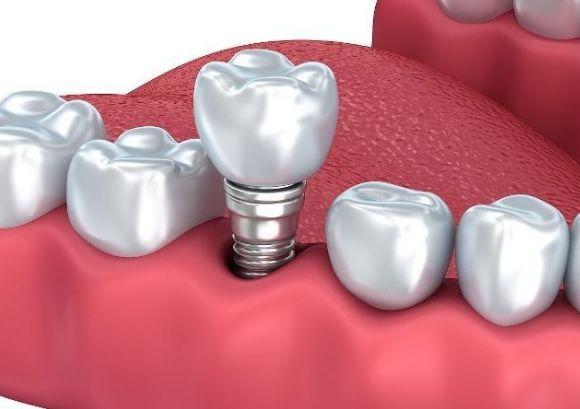 种植牙的原理是怎么样的呢 种植术后可以出现脱落的情况吗