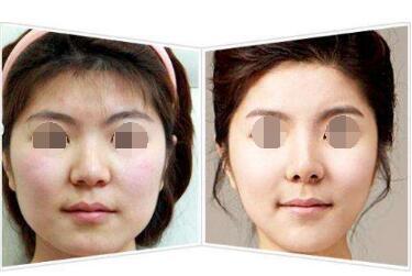 面部吸脂后皮肤会松弛吗  面部吸脂需要多少钱