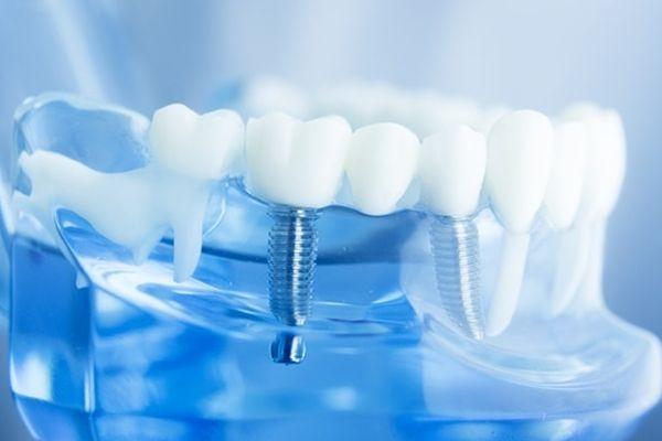 种植牙需要几次疗程呢 怎么样维持种植时效呢