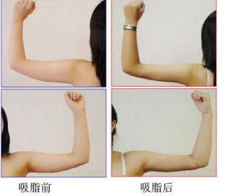 手臂吸脂会反弹吗  手臂吸脂有副作用吗