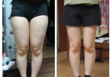 大腿部吸脂减肥的效果怎么样  水动力腿部吸脂需要多少钱