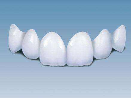 全瓷牙的好处有哪些呢 让自己显露出稚嫩般的獠牙