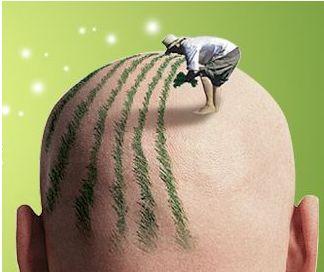 fut植发的缺点有哪些呢 秃顶治疗?#20301;?#24320;头