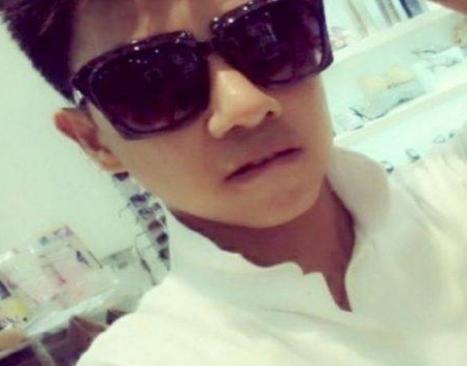 自菲律宾男模Alviso路边做鼻整容毁容 留下了永久的疤痕