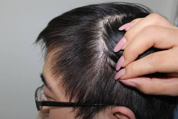 什么样的疤痕不能进行植发手术呢 疤痕植发的价格怎么样