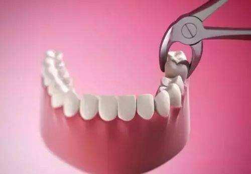 为什么要进行正畸拔牙呢 拔牙危害有哪些呢