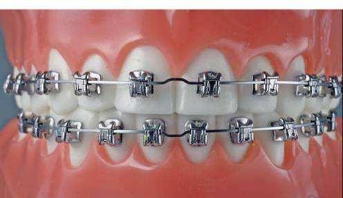 牙齿矫正三个阶段治疗 让牙齿和为人一样端端正正
