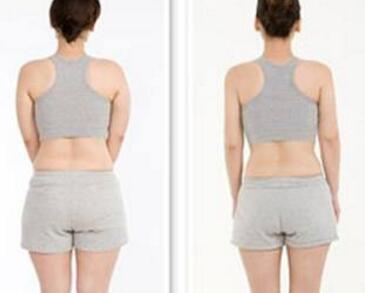 什么是超声吸脂术  背部吸脂多久能恢复呢