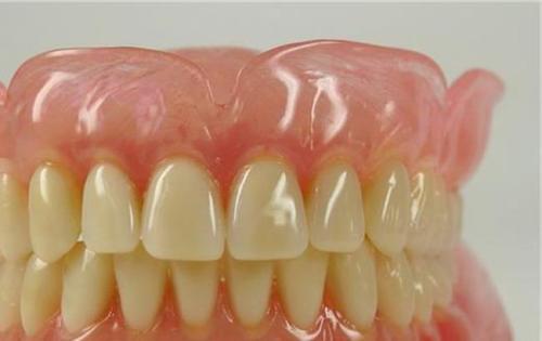 隐形义齿修复的优势有哪些呢 形态逼真让自己举止得体