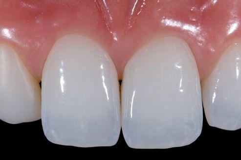 烤瓷牙和全瓷牙的区别有哪些呢 效果因素被什么所阻碍呢