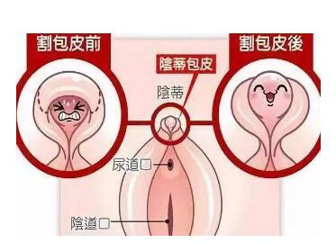 阴蒂肥大有哪些危害  阴蒂肥大切除效果怎么样
