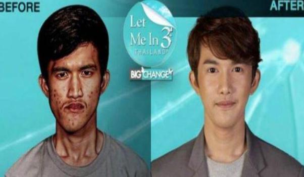 泰国22岁男子NoppajitMonlin丑男秒变男神 赴韩整容后亲妈认不出