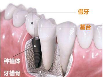 种植牙的寿命可以使用多长时间  媲美真牙告别遗憾