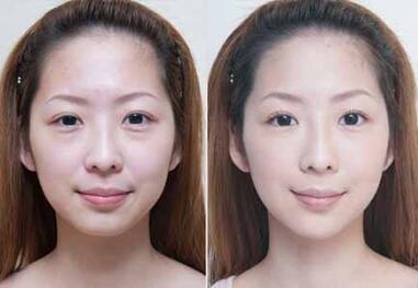 激光去法令纹的效果能维持多久  激光除皱紧肤有哪些优势