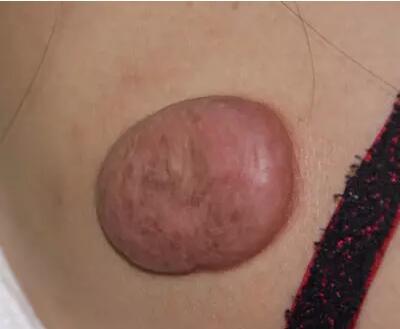 激光<font color=red>祛疤</font>打造稚嫩肌肤 让疤痕不再是阻碍