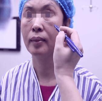 激光面部除皱肌肤年轻化 让逝去的年轻从头再来