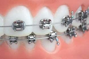 牙齿矫正失败的原因有哪些呢 矫正失败怎么办呢