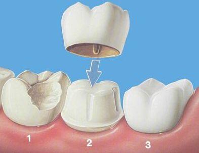 这么样避免烤瓷牙失败呢 牙齿修补不要越陷越深