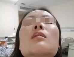下颌角磨骨手术脸型雕塑 瘦脸磨骨两不误