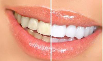 牙齿美白效果好的手术方式是什么 存在着什么风险呢