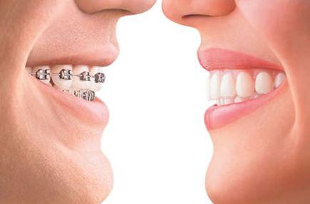 自锁托槽牙齿矫正的好处有哪些呢 存在着什么优缺点呢