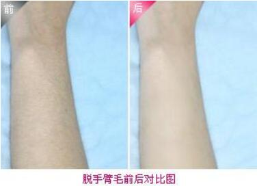 激光手臂脱毛的效果怎么样  手臂激光脱毛有什么危害呢