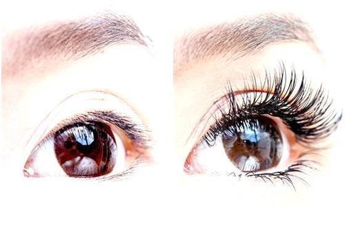 注意哪些事项防止眼睫毛的脱落 睫毛种植的价格因素有哪些