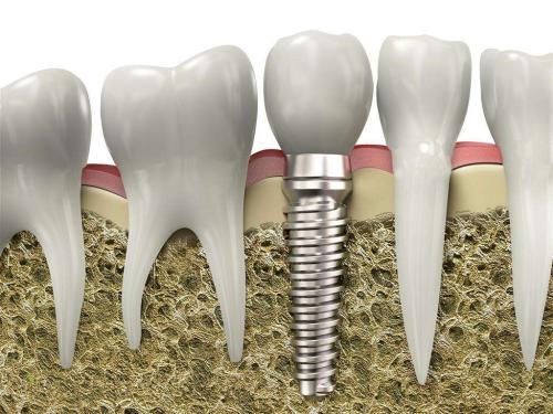 种植牙和镶牙哪一个更好呢 牙齿缺陷修复不让笑容漏风