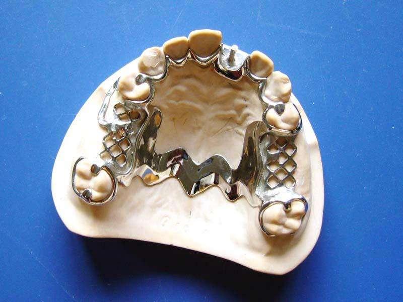 烤瓷牙的效果怎么样呢 金属烤瓷牙效果可以维持多久呢