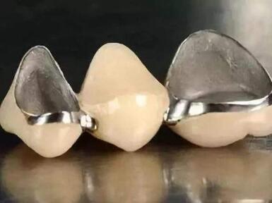 烤瓷牙崩瓷该怎么办呢  导致崩瓷的原因有哪些