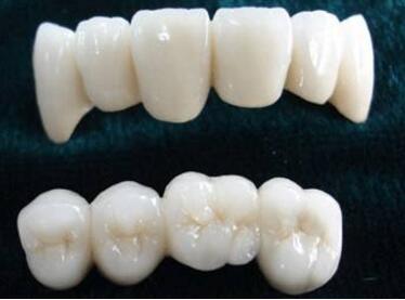 烤瓷牙边缘变黑是怎么回事呢  适合做烤瓷牙的有哪些种类