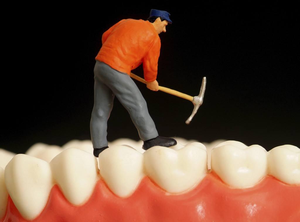 镶牙的种类有哪些呢 镶牙术后对假牙怎么样保养呢