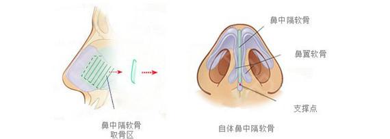 做鼻中隔隆鼻手术多久看到效果