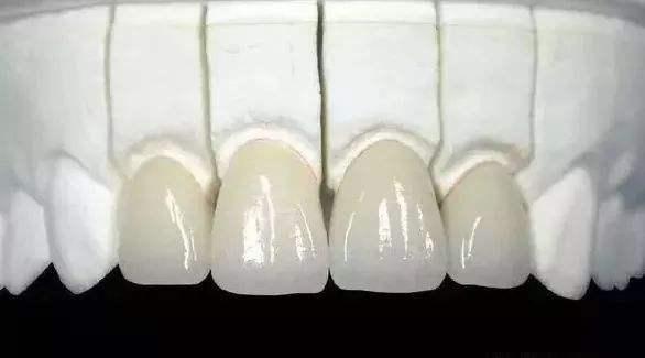哪些因素会影响到烤瓷牙的效果呢 让牙齿不再出纰漏