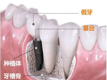 补牙与镶牙的区别有什么  种植牙的成功率高吗