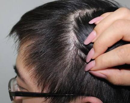 秃头怎么办 昆明雍禾疤痕植发价格