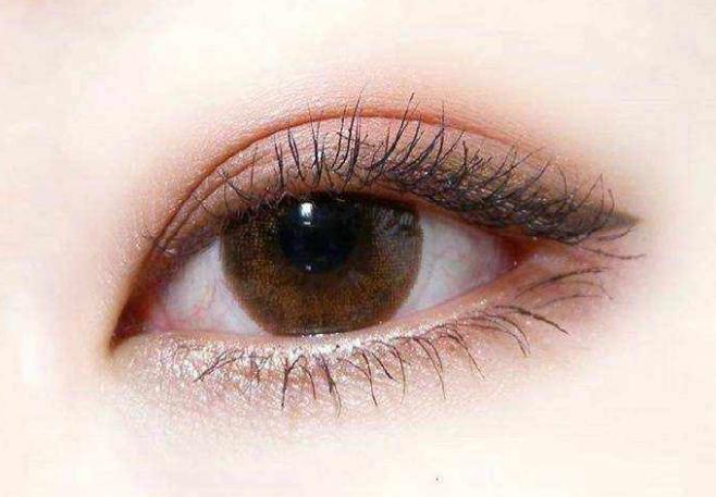埋线双眼皮多久能恢复 适合人群有哪些