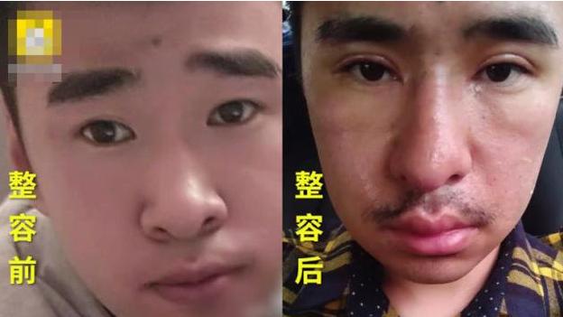 陕西西安张先生割双眼皮+隆鼻 感觉自己老了十几岁