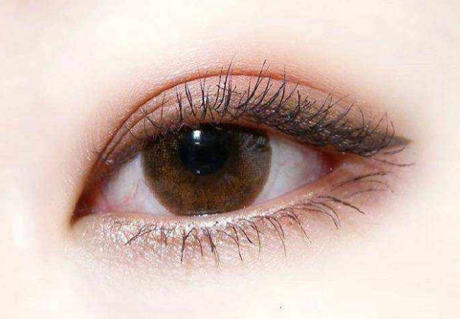 双眼皮修复注意事项有什么 修复方法有哪些