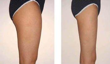 腿部吸脂的方式是什么 效果可以保持多久