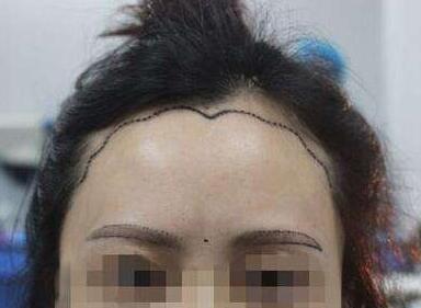 经常掉头发怎么办 广州美人尖种植哪里好