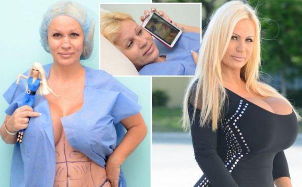 46岁女子Lacey Wildd多次整容 永不停息的整容达人
