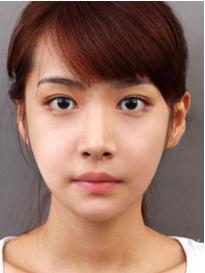 哈密阳光医院美容整形科上眼脸下垂矫正效果怎么样
