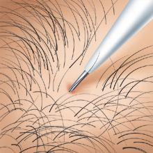 疤痕处可以植发吗 疤痕植发的原理是什么